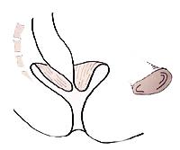 rektumprolapsinnererschema