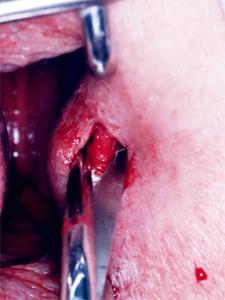 sphinkterotomie