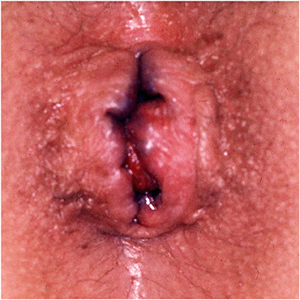 analvenen trombose abspritzen beim blasen