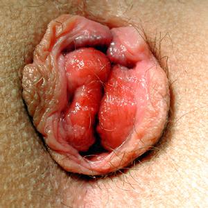 Ständiger Hämorrhoidalprolaps, Grad 4