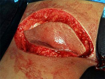 sinus-Ausschneidung